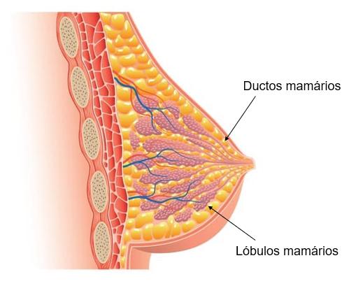 Cancerul mamar (cancerul de sân)   Centrul Oncologic SANADOR