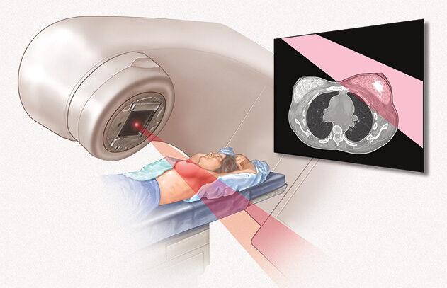 tratamento-do-cancer-de-mama-oncologica-do-brasil-002-e1592939209274 O Que é o Linfoma de Hodgkin